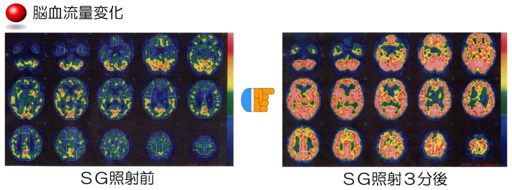 PX脳血流量変化(具志堅先生)[1]